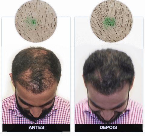 Kirkiland Hair Regrowth